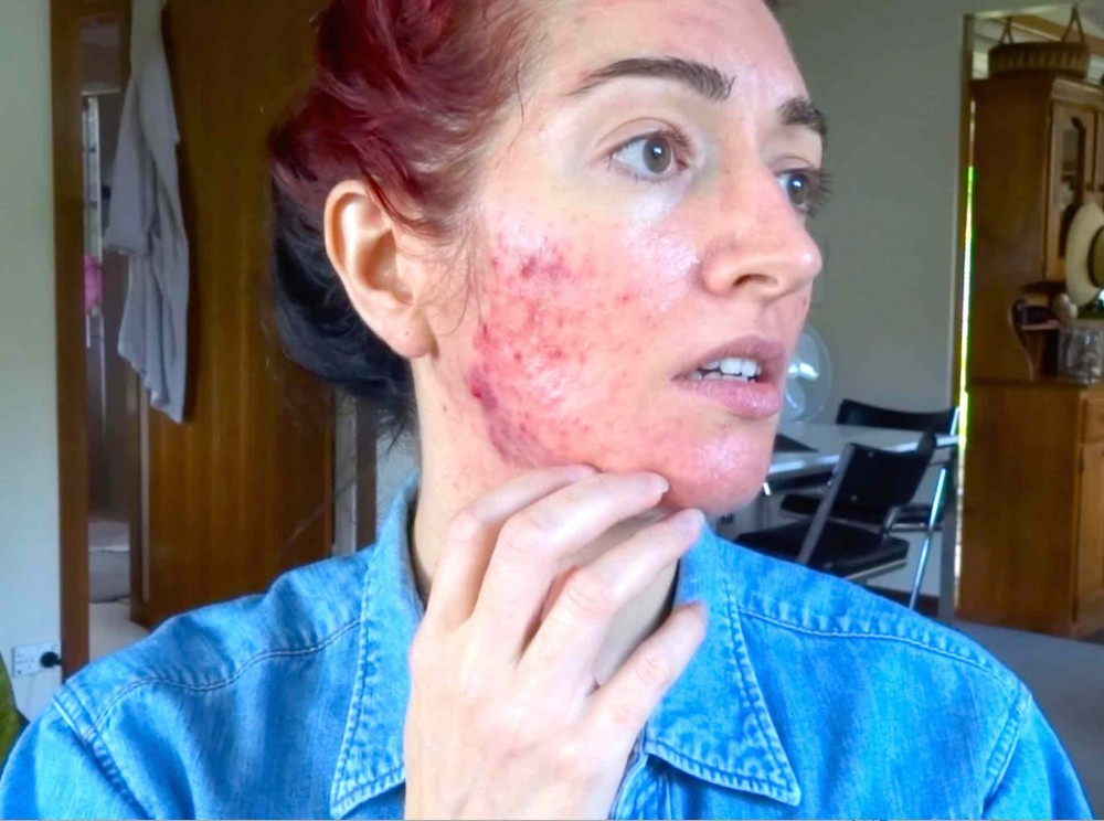 Jess Bunty Accutane Acne Treatment October 2017