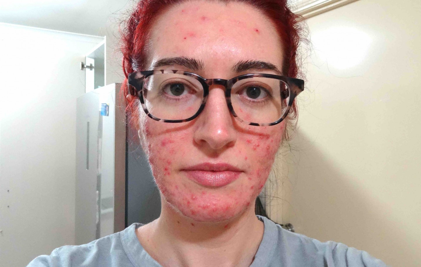 Jess Bunty Accutane Acne Treatment September 2017