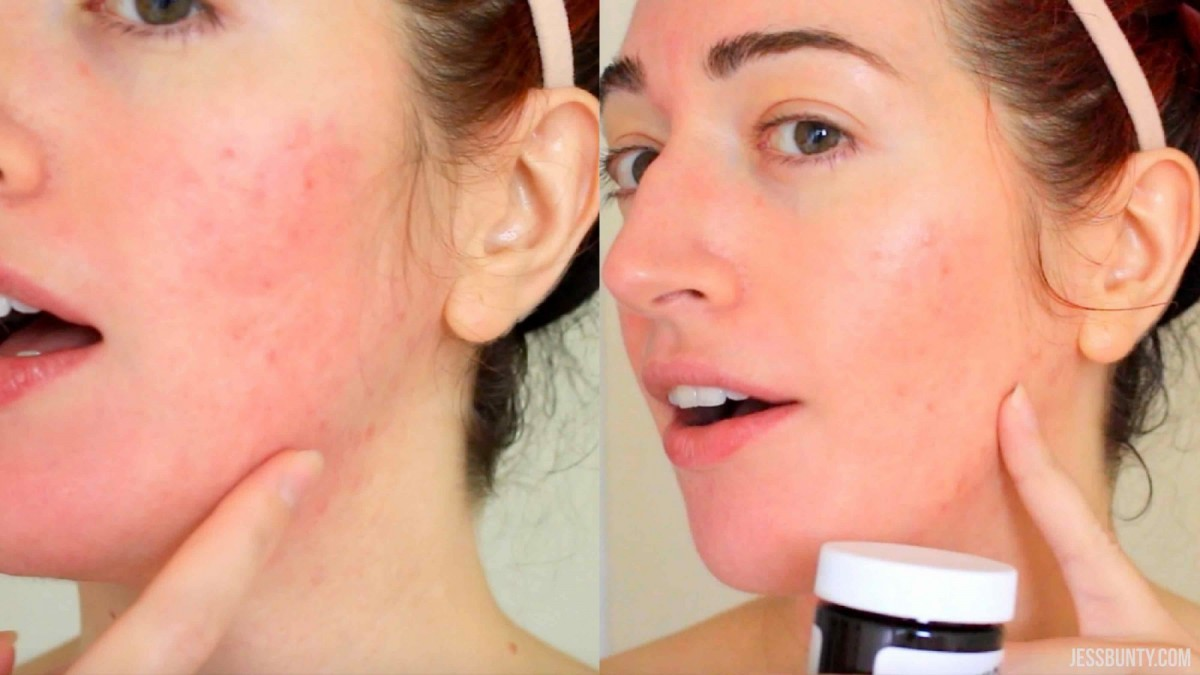 Banish Acne Scars Pumpkin Enzyme Mask Review Results Before And After Jess Bunty